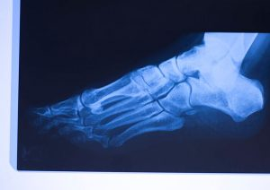 Xray-of-the-stress-fracture