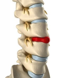 Discus hernia and back pain