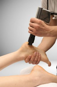 physiotherapy - treatment with ESWT therapy