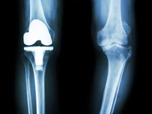 Knee osteoarthritis and the knee replacement