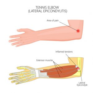 Inflammation of the wrist extensors tendons on the elbow